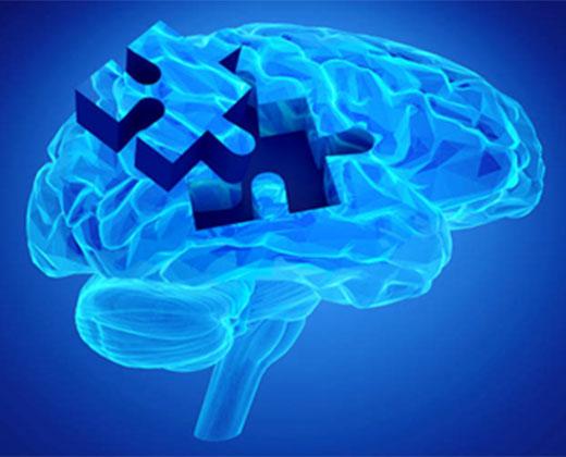Brain Health Workshop